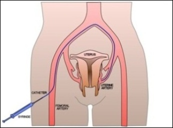 Fibroid Embolisation Schematic Oxford Interventional Radiology